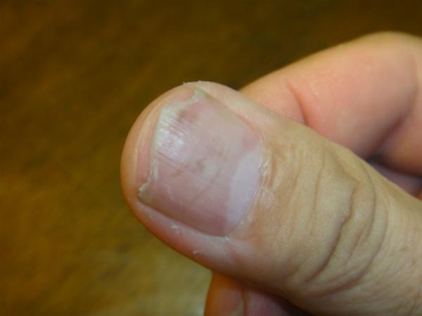 ホイールを2本磨いたあとの親指の爪